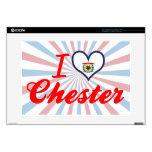 Amo Chester, Virginia Occidental Portátil Skins