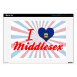 Amo Middlesex, Vermont Portátil Skin
