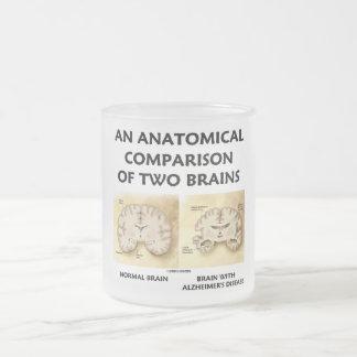 An Anatomical Comparison Of Two Brains Alzheimers Mug