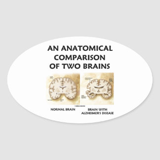 An Anatomical Comparison Of Two Brains Alzheimers Oval Sticker