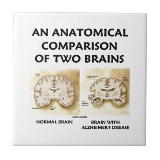 An Anatomical Comparison Of Two Brains Alzheimers Small Square Tile