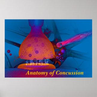 Anatomía de la conmoción cerebral póster