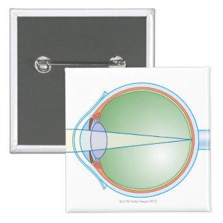 Anatomía del ojo pin cuadrada 5 cm