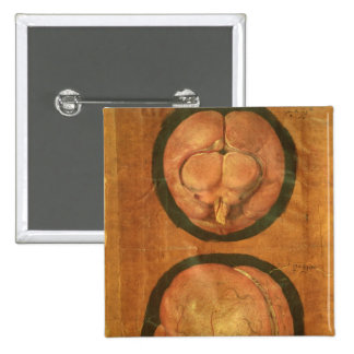 Anatomical drawing of the human brain pinback button