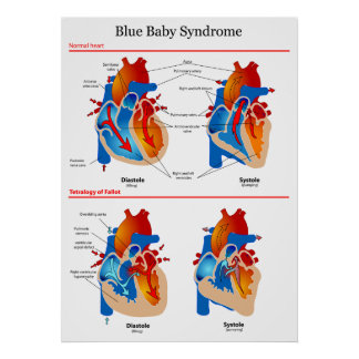Anatomical Heart Diagram of Blue Baby Syndrome Print