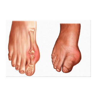 Anatomy Of A Swollen Foot Canvas Print