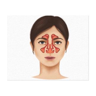 Anatomy Of Nasal Sinuses Canvas Print