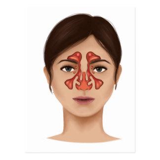 Anatomy Of Nasal Sinuses Postcard