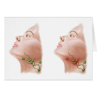 Anatomy Of Swollen Lymph Nodes Greeting Card