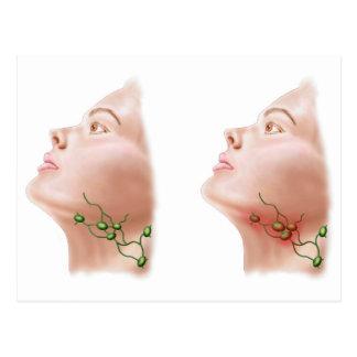 Anatomy Of Swollen Lymph Nodes Postcard