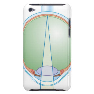 Anatomy of the Eye iPod Touch Case