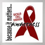 Anemia de células falciformes de la conciencia 1 impresiones