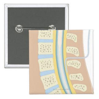 Anestesia epidural pin cuadrado