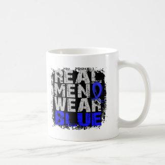 Ankylosing Spondylitis Real Men Wear Blue Classic White Coffee Mug