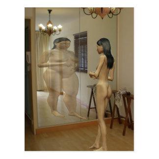 Anorexia Postcard