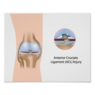 Anterior Cruciate Ligament injury Poster
