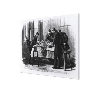 Antiseptic Surgery, 1882 Canvas Print