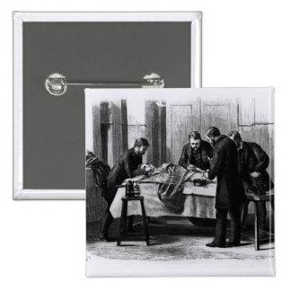 Antiseptic Surgery, 1882 Pinback Button