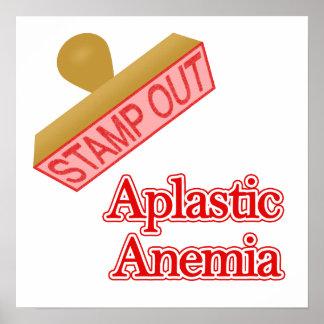 Aplastic Anemia Poster