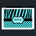 "Aqua Blue and Black Zebra Stripe Polka Dot Laptop Decal For 17&quot; Laptop<br><div class=""desc"">This funky personalized aqua blue and black zebra striped and polka dot pattern laptop skin has template boxes for you to personalize with your name, initials, monogram, or other text. ***PLEASE note that if you change the computer make and model that it MAY alter the design and part of it,...</div>"