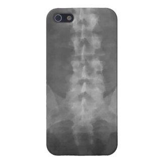 Arte de la radiografía de Digitaces iPhone 5 Carcasas