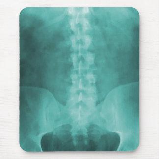 Arte Mousepad de la radiografía de Digitaces de la