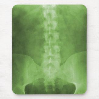 Arte verde Mousepad de la radiografía de Digitaces