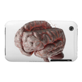 Arteries of the Brain 3 iPhone 3 Cover