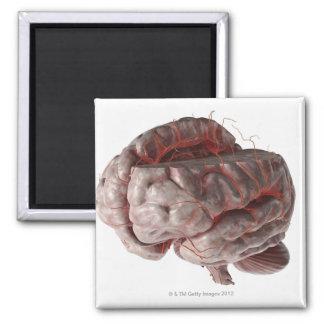 Arteries of the Brain 3 Magnet