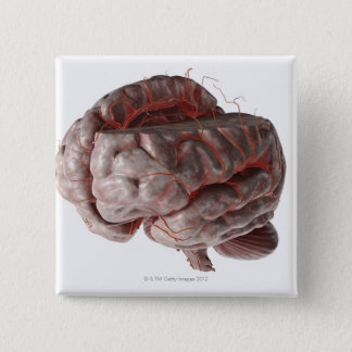 Arteries of the Brain 3 Pinback Button