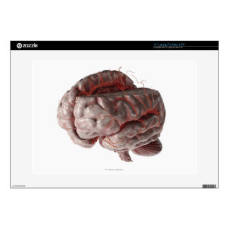 Arteries of the Brain 3 Laptop Skin