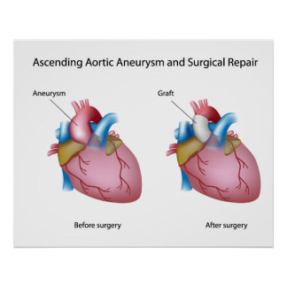 Ascending aortic aneurysm surgery Poster
