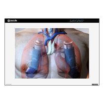 "Asthma 15"" Laptop Decals"