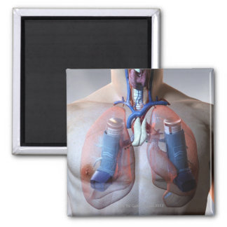 Asthma 2 Inch Square Magnet