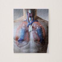 Asthma Jigsaw Puzzle