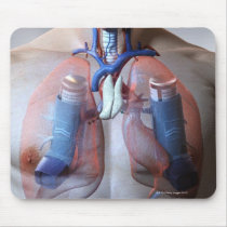 Asthma Mouse Pad