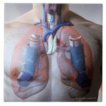 Asthma Tile