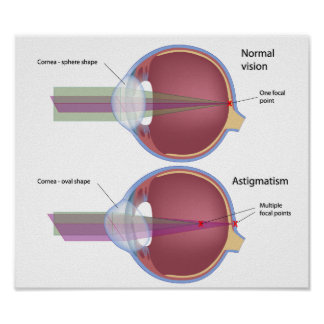 Astigmatism, a common eye defect Poster
