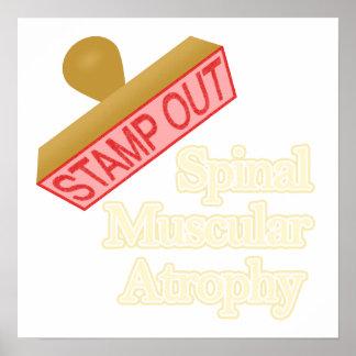 Atrofia muscular espinal posters