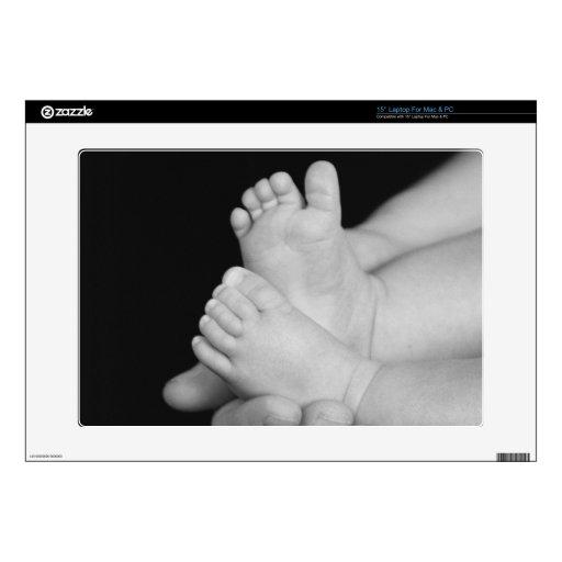 """B&W Baby Feet 15"""" Laptop Skin"""