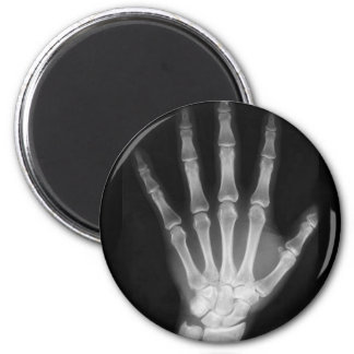 B&W X-ray Skeleton Hand 2 Inch Round Magnet
