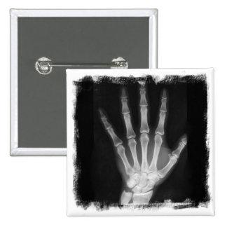 B&W X-ray Skeleton Hand Button