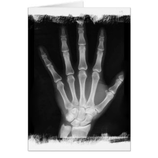 B W X-ray Skeleton Hand Greeting Cards