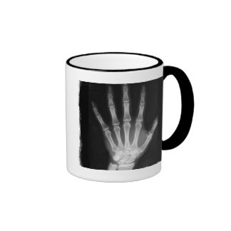 B&W X-ray Skeleton Hand Mugs