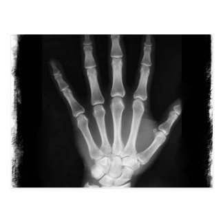 B&W X-ray Skeleton Hand Postcards