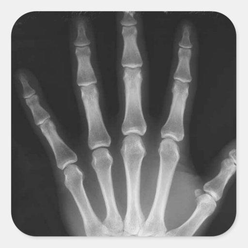 B&W X-ray Skeleton Hand Square Stickers