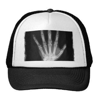 B&W X-ray Skeleton Hand Trucker Hat