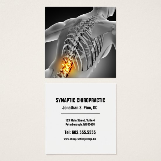 Back Pain Photo Graphic Square Chiropractic Square Business Card