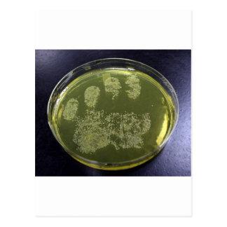 Bacterias de la placa de Petri de la mano Postales