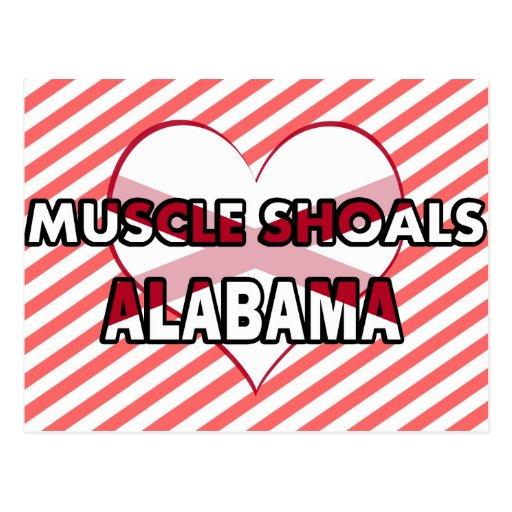 Bajíos del músculo, Alabama Postales